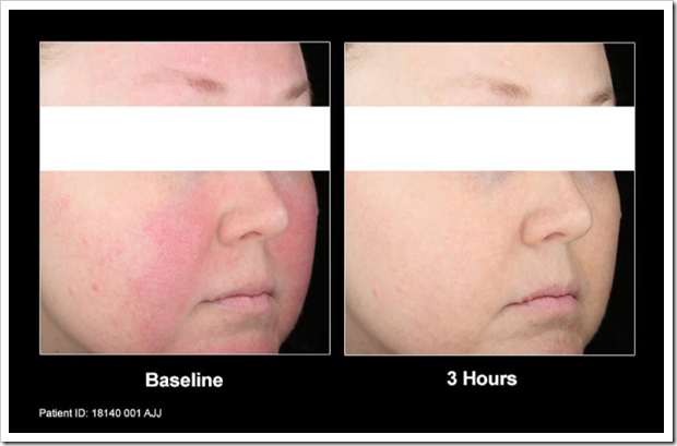 Mirvaso Before And After Pictures Rosacea Support Group