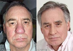 Coblation with Saline and Radio Frequency Induced Plasma: Rhinophyma Miracle