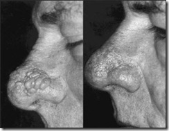 Treating Rhinophyma (large swollen nose) with ER:YAG Laser
