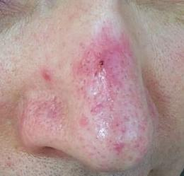 What is the difference between acne and rosacea?